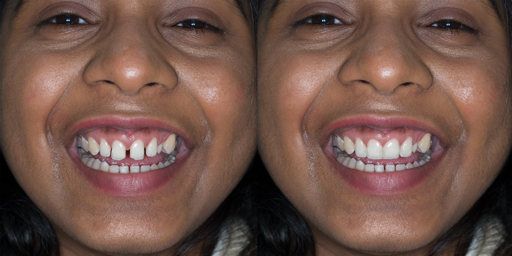 Photo-Realistic-Diagnostics ron winter of fabulous teeth @ seaside dental laboratory & clinic Takapuna Auckland New Zealand.jpg