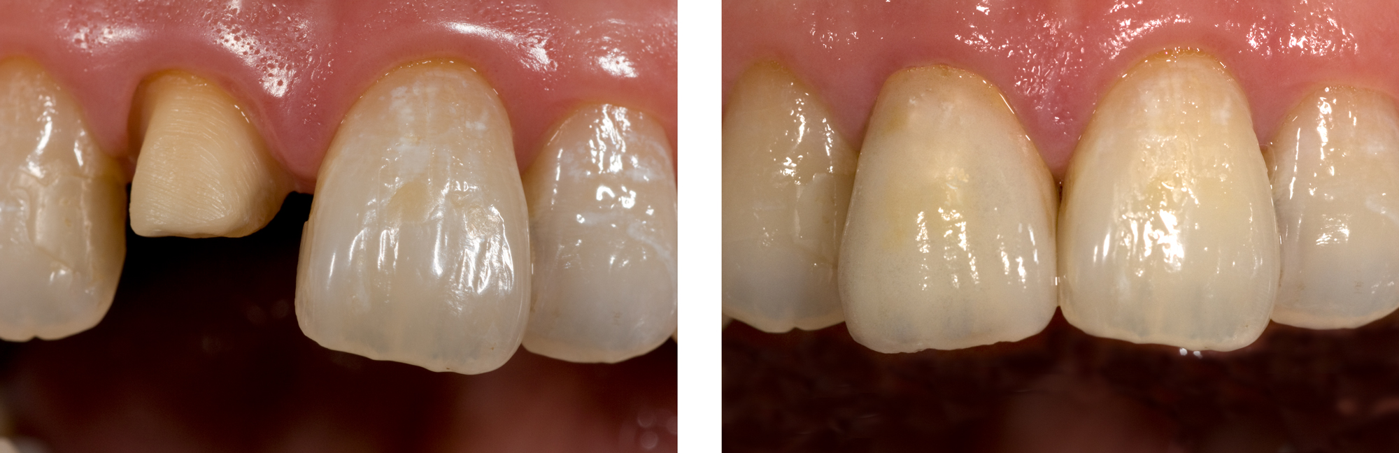 Single-Central-James-Wong-Ian-Chen-B--A by Ron Winter of Fabulous Teeth @ Seaside Dental Laboratory & Clinic.jpg