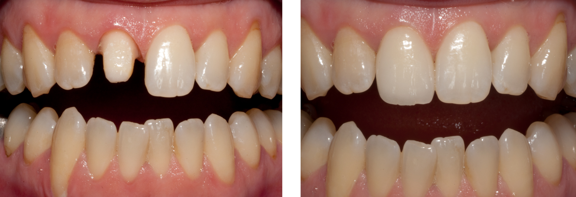 Single-Front Tooth By Ron Winter of Fabulous Teeth @ Seaside Dental Laboratory $ Clinic Takapuna Auckland New Zealand.jpg