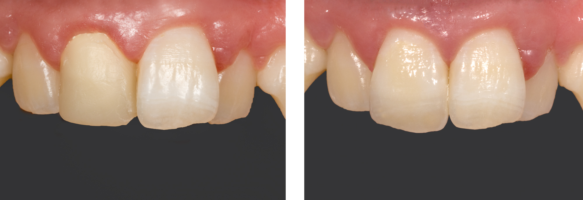 Single Front Tooth by Ron Winter of Fabulous Teeth @ Seaside Dental Laboratory Takapuna Auckland New Zealand.jpg