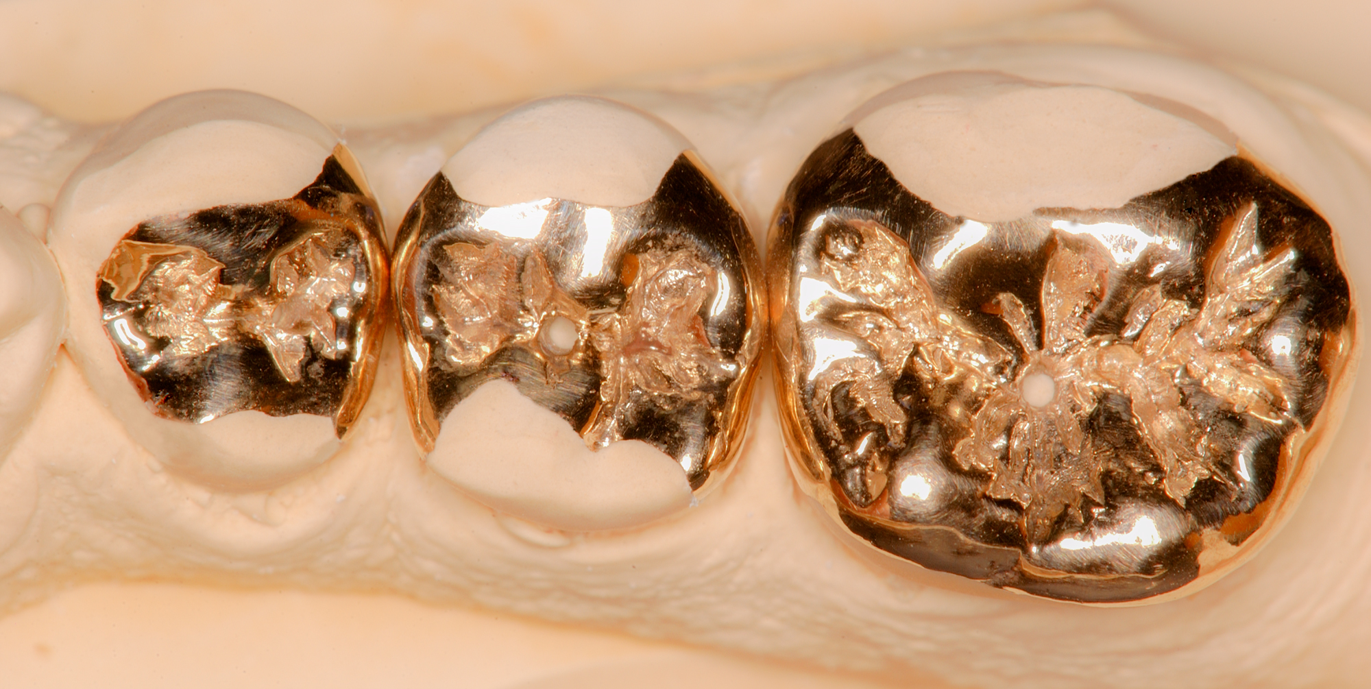 Three-Gold-Onlays-with-Vents ron winter of fabulous teeth @ seaside dental laboratory & clinic Takapuna Auckland New Zealand.jpg