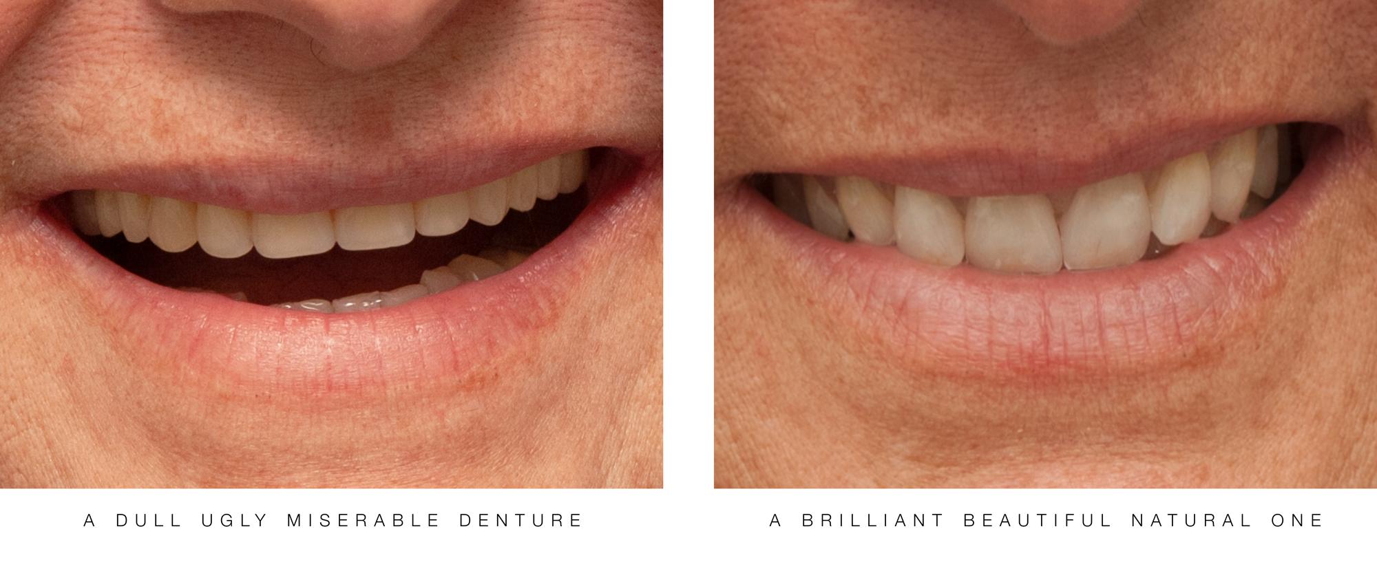 Fabulous Teeth :: 5 Dentures