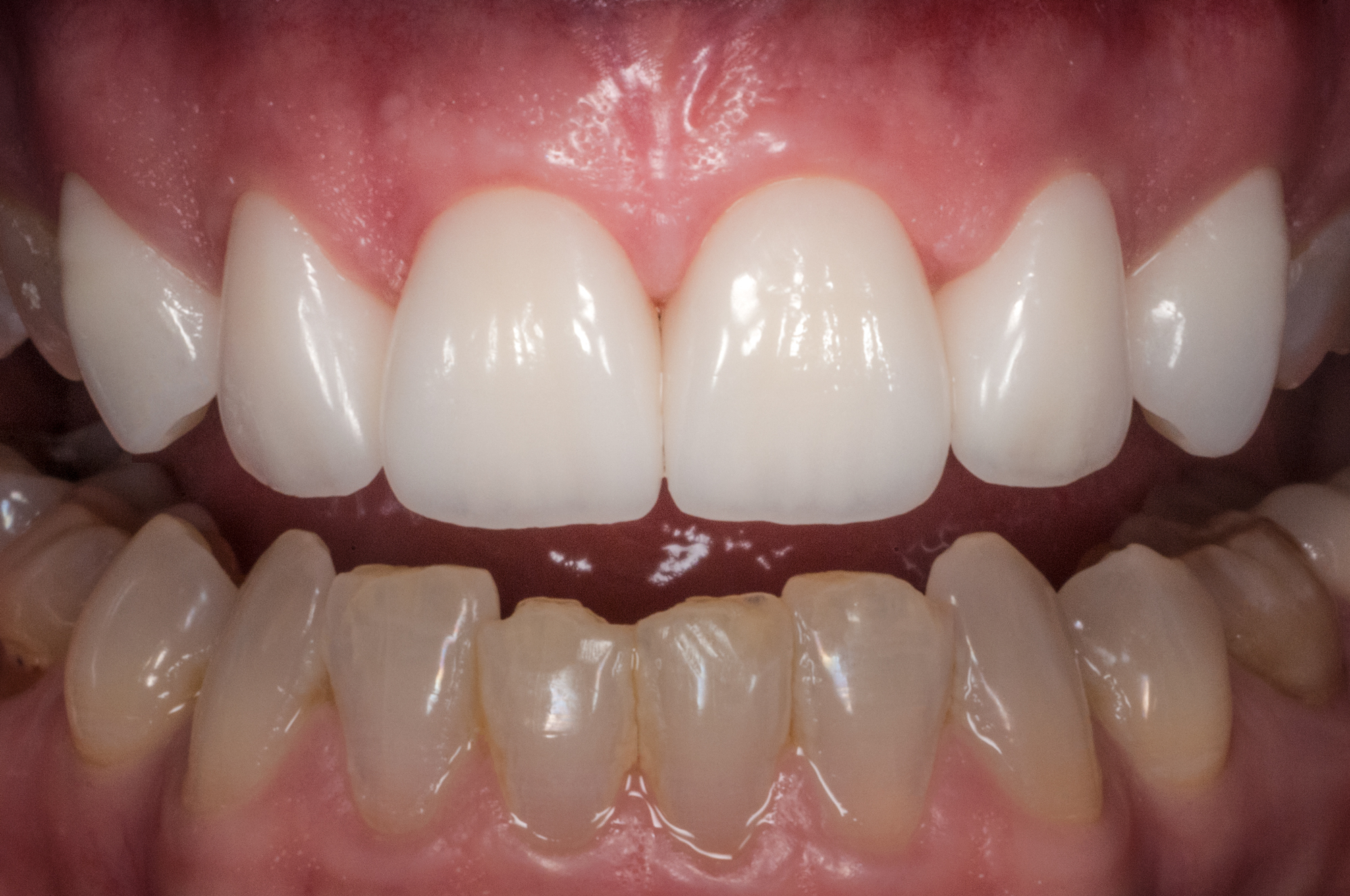 6 Upper front teeth by Ron Winter of Fabulous Teeth @ Seaside Dental Laboratory & Clinic Takapuna Auckland New Zealand .jpg
