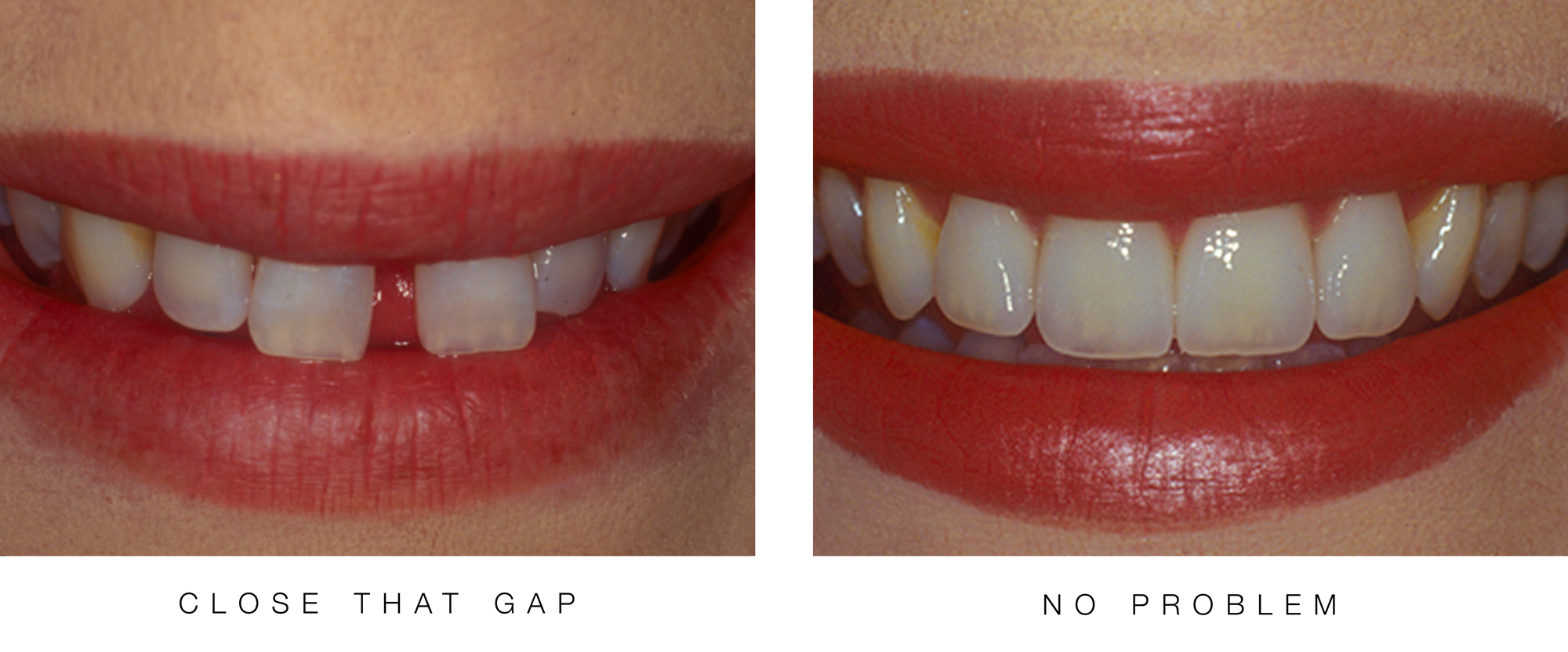 Close-That-Gap---No-Problem by Ron Winter of Fabulous Teeth 2 Seaside Dental Laboratory & Clinic .jpg
